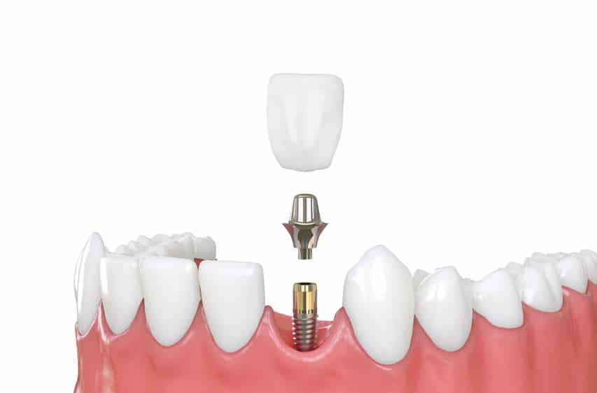 Zahnimplantat, Implantataufbauteil, Implantatkrone