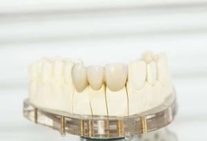 Bild zeigt eine passgenaue Zahnkrone und Zahnbrücke