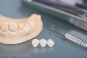 Bild zeigt eine Zahnkrone aus unserer ungarischen Zahnklinik