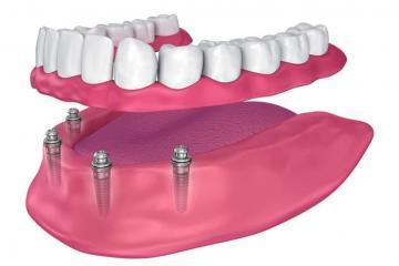 Zahnimplantat, Zahnersatz, Zahnprothese Ungarn