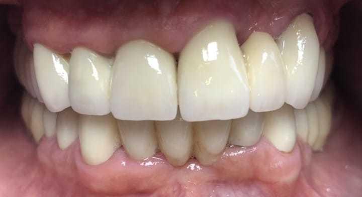 Hochästhetische Zirkonkronen bei Helios Dental in Ungarn