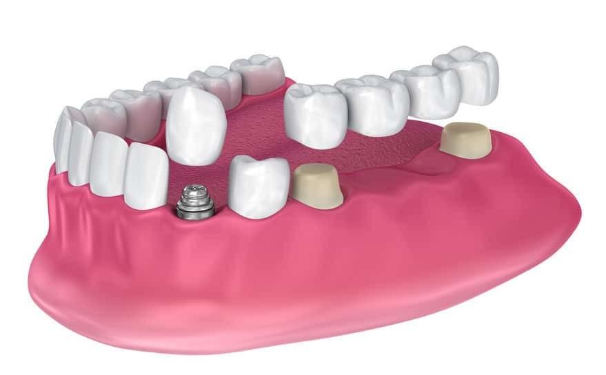 Zahnkrone, Zahnbrücken