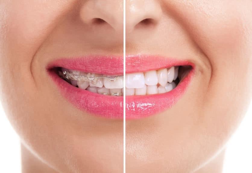 Ästhetische Zahnregulierung