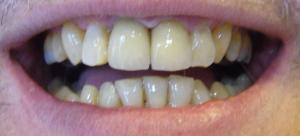 Zahnregulierung bei Erwachsenen