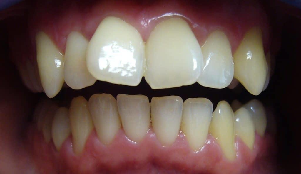 Zahnfehlstellung bei uns in Ungarn behandeln
