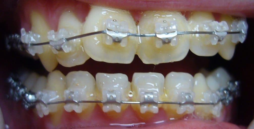 Zahnregulierung bei uns in Ungarn