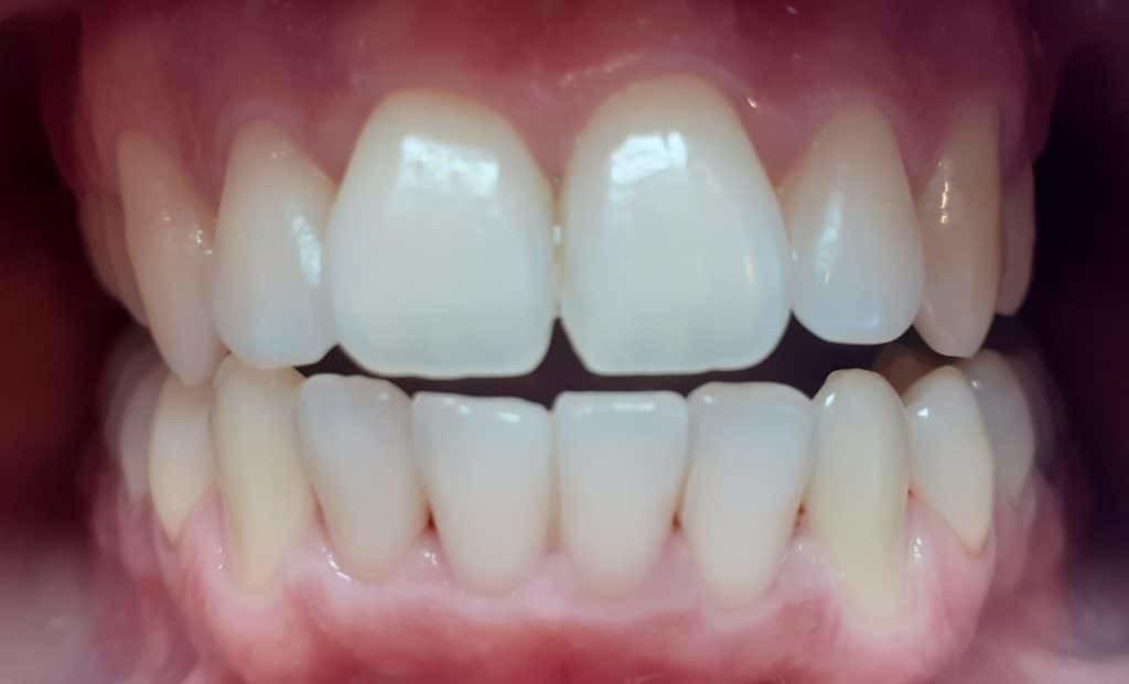 Nach der Zahnregulierung