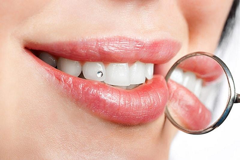 Zahnschmuck bei Helios Dental