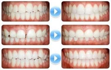 Zahnfehlstellungen und deren Korrektion