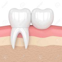 Bild zeigt Zahnkronen aus unserer ungarischen Zahnklinik