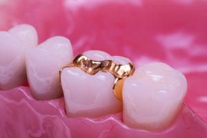 gold-inlays-zahnklinik-ungarn