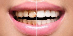 Vorher-Nachher-Bilder aus Ihrer Zahnklinik