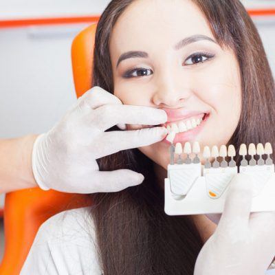 Beautiful asian woman smile with healthy teeth whitening. Dental care concept. Set of implants with various shades of tone