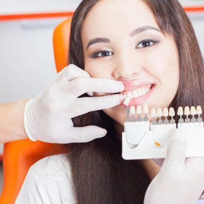 Auswahl der passenden Zahnfarbe in Ungarn
