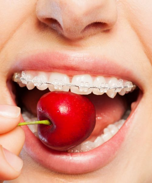 Close-up of woman's mouth with clear orthodontic brackets biting off ripe cherry