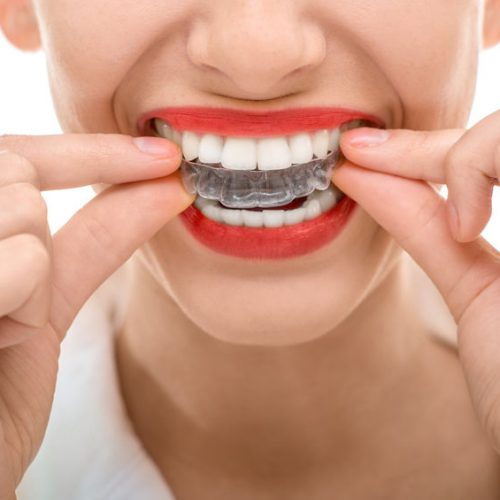 Closeup portrait of charming woman wearing orthodontic silicone trainer